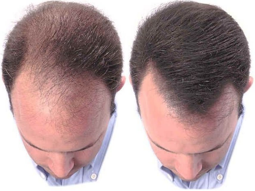 Увлажняющее средство для замедления роста волос Dominic Diselle